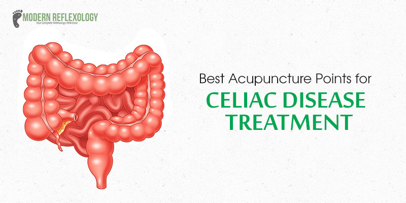 Acupuncture Points for Treating Celiac Disease