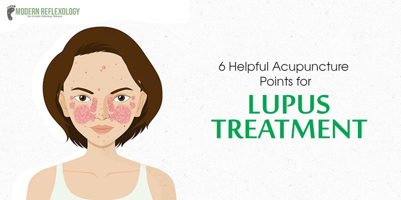 acupuncture for lupus