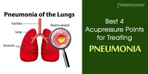Pneumonia-of-the-lungs