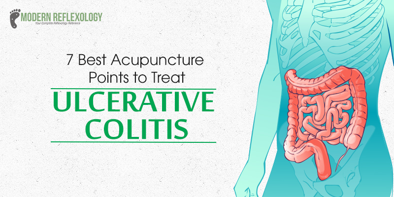 Effective Acupuncture Therapy for Acute Ulcerative Colitis Disease