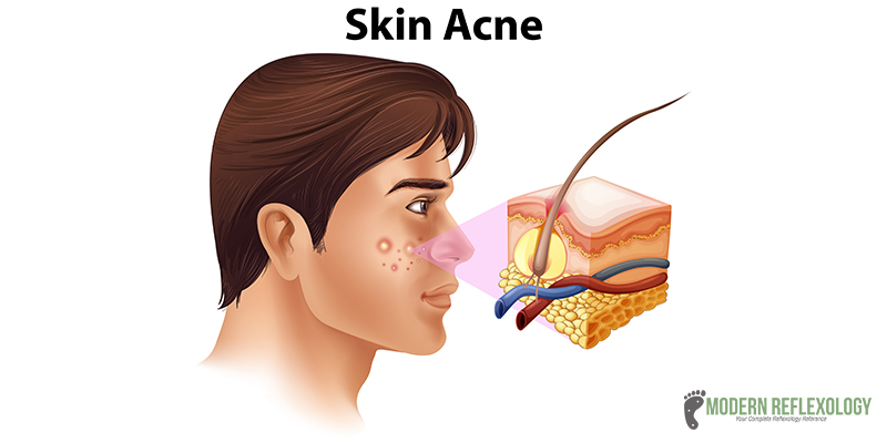 Acne infected skin